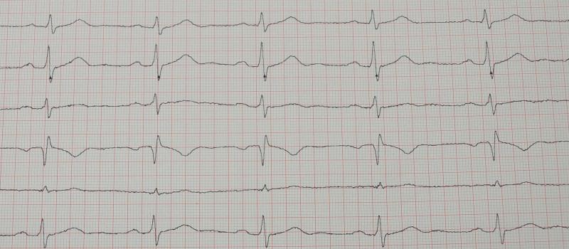 EKG Ausdruck Sinusrhythmus Herzfrequenz mit 84
