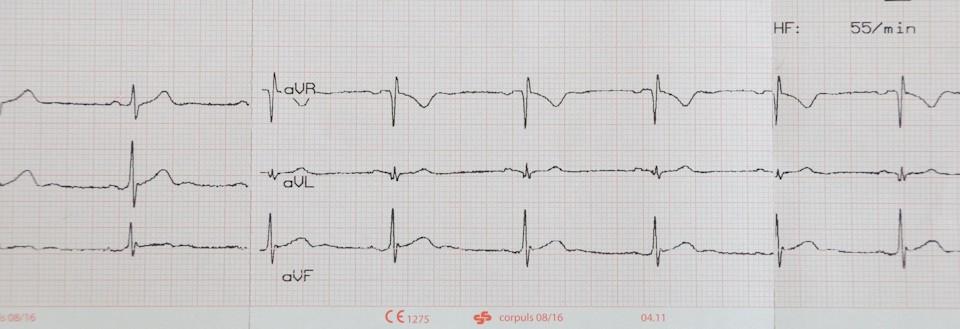 EKG Ausdruck Sinusrhythmus